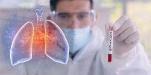 Covid-19 e trombosi polmonare - 4.11.2020