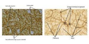 Il cervello umano assomiglia all'Universo? - 17.11.2020